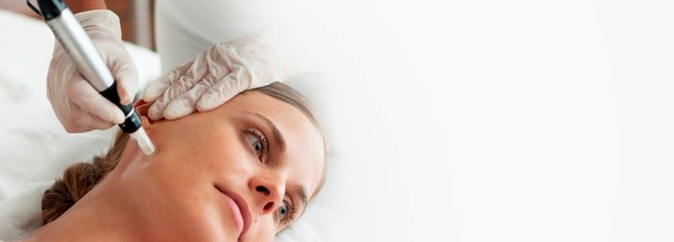 erasecit- microneedling-treatment