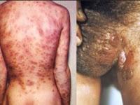 Bahan Alami Untuk Menyembuhkan Penyakit Sipilis Akut