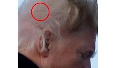 Misteri Rambut Presiden Amerika Donald Trump