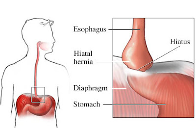 What is Paraesophageal hernia - Definition, Symptoms, Causes, Treatment