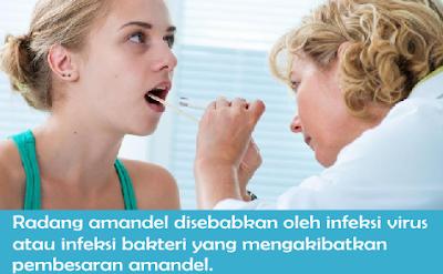 Harga Jual Obat Amandel Tanpa Operasi Dan Larangannya yang Paling Dicari