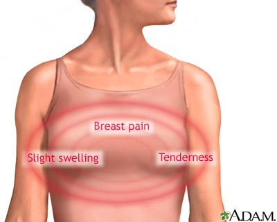 Symptoms Of Colon Cancer In Men Pain Signs Of Breast Cancer In Women With Implants Detection