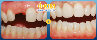 Xử lý gãy răng của theo số lượng răng mất