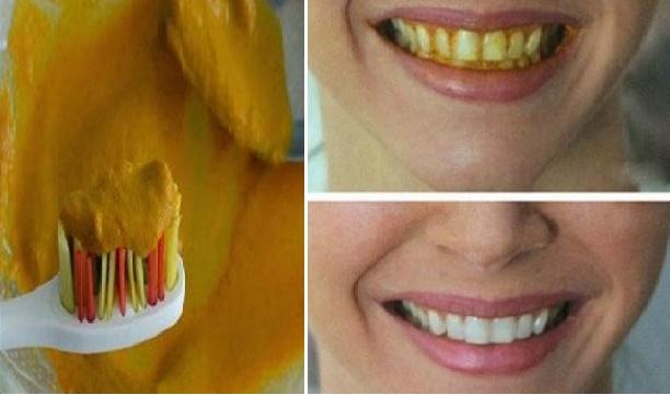 Gigi Anda Kuning Banyak Plak Dan Karang Gigi Gunakan Bahan Alami ini  Nyatanya Efektif Putihkan Gigi dalam Waktu 5 Menit.!! Di Share Ya. 72cdd0c600