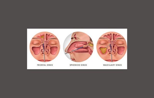 Sinus Maksilaris, Sinus Frontalis, Sinus Spenoidalis, Sinus Ethmoidalis