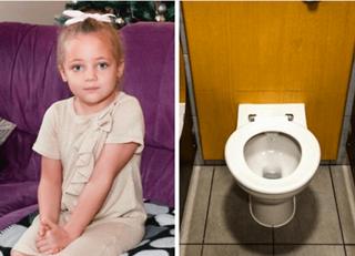 Kulit Balita Robek Terkena Lem Super di Toilet McDonald's
