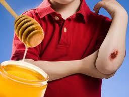 En como aplicar una herida miel