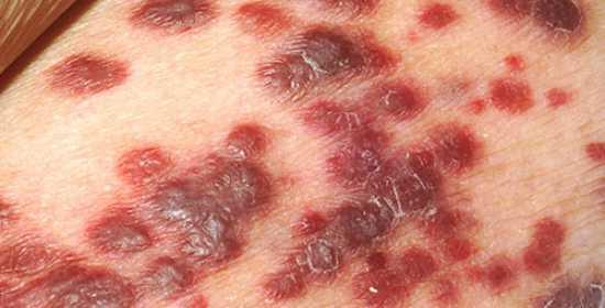 Gejala dan penyebab herpes