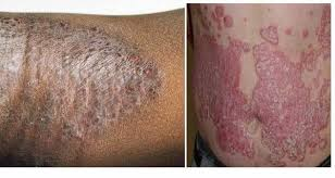 Gatal dan kulit menebal di kaki seperti eksim menahun