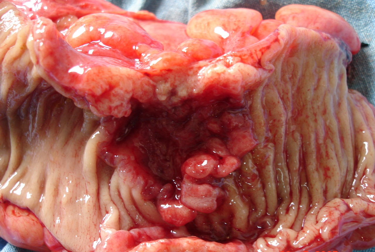 Malignant Ulcer In The Large Intestine Colorectal Cancer