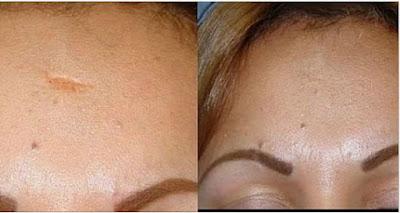 Une cicatrice peut disparaître complètement et voici comment !! (vergetures, acnés, blessures…)