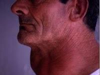 Ramuan untuk penyakit gondok | obat penyakit gondok