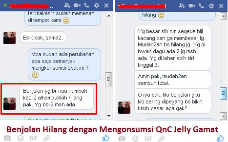 Testimoni QnC Jelly Gamat Menghilangkan Benjolan Di Tubuh