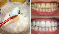 how to whitten your teeth