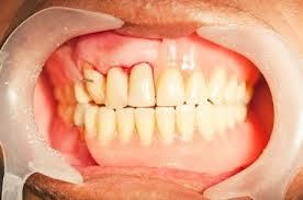 Gusi Berdarah Gusi Berdarah | Gusi Sering Berdarah  Penyebab Gusi Berdarah dan Cara Mengatasinya Punca gusi berdarah  Ini Penyebab Gusi Sering Berdarah dan Tips Mencegahnya Apakah Gusi Berdarah Anda Tanda Penyakit Serius gusi sering berdarah pertanda sakit apa gigi berdarah terus gigi berlubang berdarah gigi berdarah saat bangun tidur penyebab gusi berdarah tiba-tiba gusi berdarah dan bengkak gusi berdarah saat sikat gigi gusi berdarah pada anak