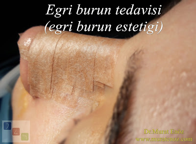 Eğri burun nedenleri - Eğri burun tanımı - Eğri burun estetiği - Eğri burun ameliyatı - Eğri burun tedavisindeki zorluklar - Crooked nose - Deviated nose - Twisted nose - Deflected nose - Asymmetric nose - Scoliotic nose - Eğri burun - C burun - S-shaped crooked nose deformity.