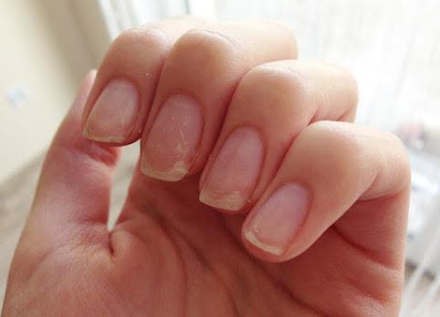 Zniszczone paznokcie po hybrydzie i żelach. Jak wzmocnić słabe i kruche paznokcie po hybrydzie, żelu i tipsach?