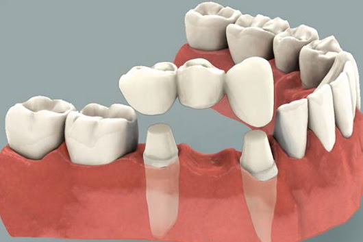 Dental Crowns everything you need to know