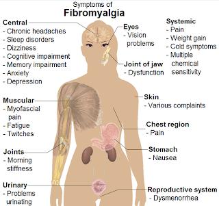 pituitary tumor: Fibromyalgia