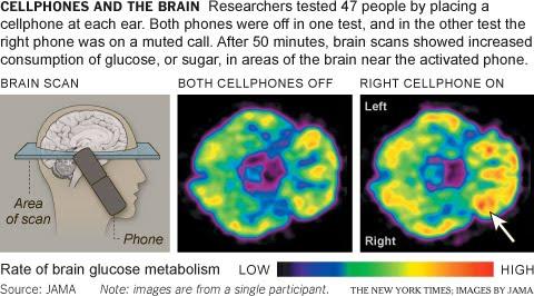 Gay brain test