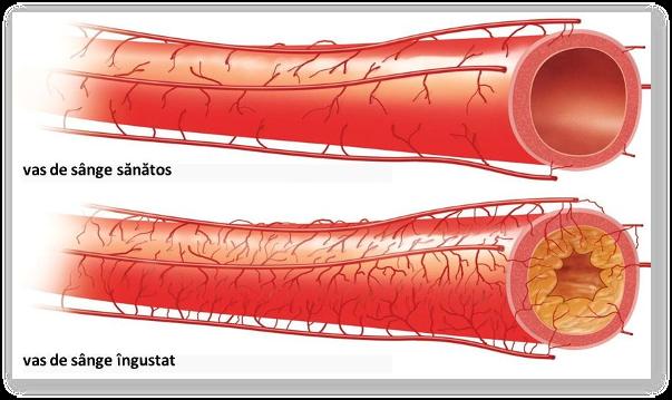 Ceaiuri pentru arterita; remedii naturiste contra arteritei