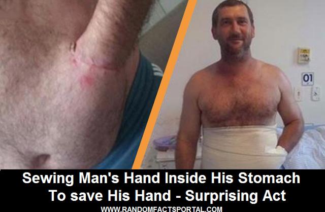 http://www.randomfactsportal.com/2017/05/sewing-mans-hand-inside-his-stomach-to.html