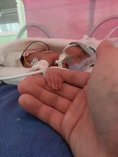 jumeaux-jumelles-prématurité-couveuse-réanimation néonatale