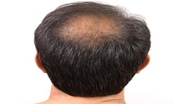 गंजी खोपड़ी पर बाल उगाने है - तो अपनाए यह तरीका - Get rid of baldness