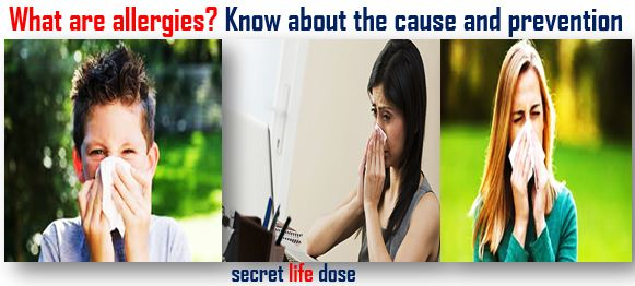 What are allergies? Know about the cause and prevention ,secret life dose