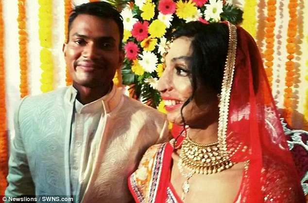 Woman Who Was Abused By Her Brother With Acid Fell In Love And Married A Man Whom She Met After Accidentally Dialing A Wrong Number!