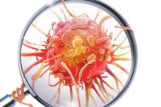 O que causa câncer e quais seus sintomas e tratamentos: Site lista fatores de risco e sintomas da doença