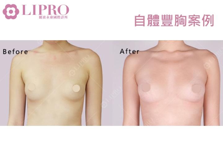 自體豐胸手術