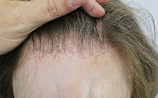 Tips Lengkap Masalah Kerontokan dan Cara Mengatasi Kebotakan Rambut
