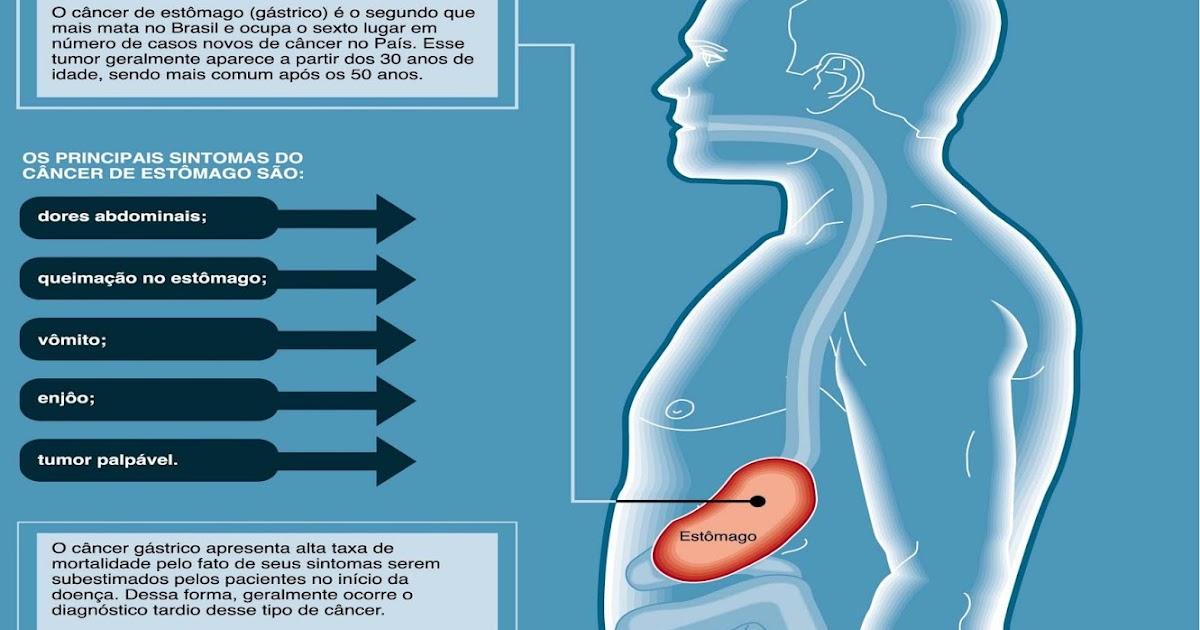 sintomas de tumor en estomago
