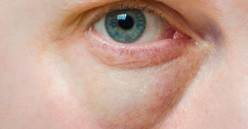 Cara Menghilangkan Garis Halus di Bawah Mata Secara Alami