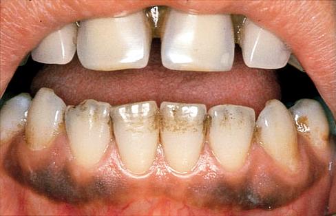 Cara Alami Memutihkan Gigi Hitam Yang Membandel Bisikan Sehat
