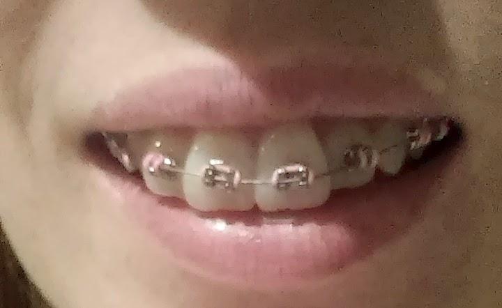 założenie stałego aparatu ortodontycznego