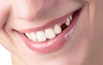 Bị gãy răng hàm và cách khắc phục an toàn hiệu quả nhất