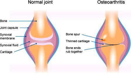 Cara Identifikasi OSTEOARTRITIS – Sakit Persendian