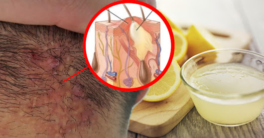 8 Simple Home Remedies to Treat Scalp Acne