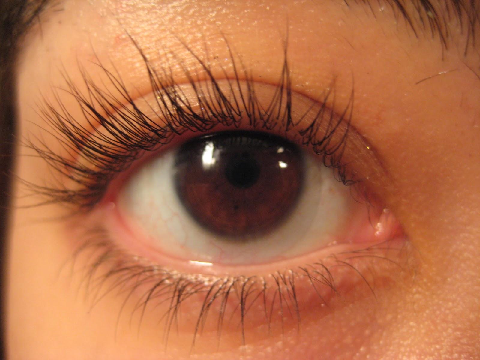 trichotillomania eyelash pulling pulling out eyelashes www ...