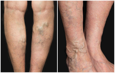 A woman who has varicose veins on her legs.