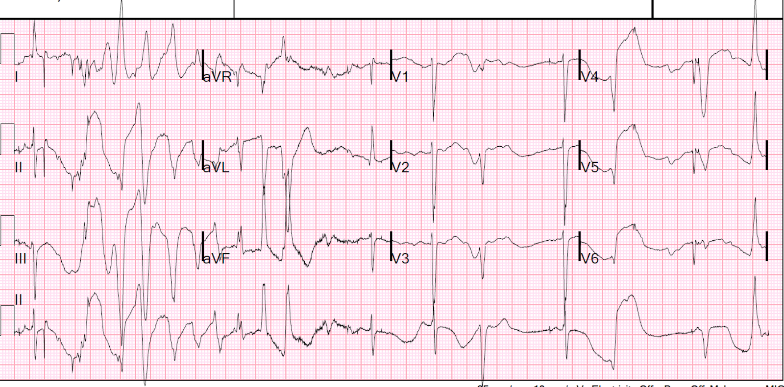 Dr. Smith's ECG Blog: Long QT Syndrome with Continuously Recurrent Polymorphic VT: Management