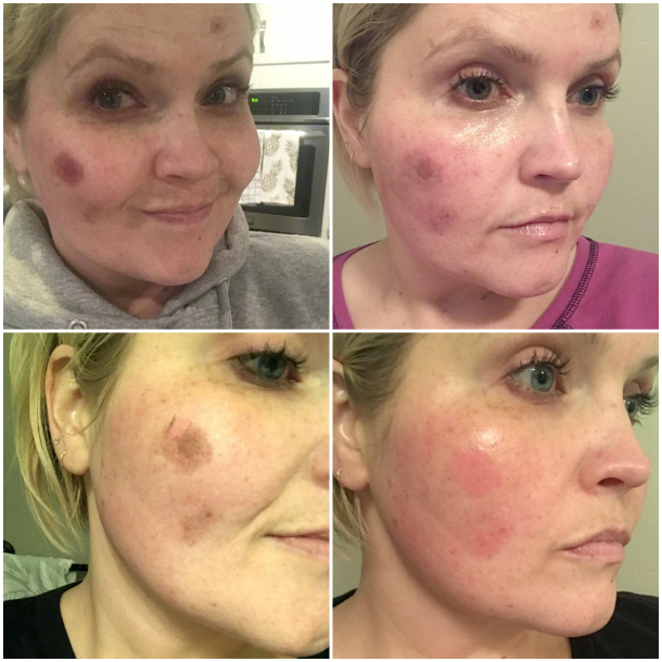 Self-Care, Microneedling + Before & Afters