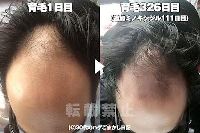 2017年4月24日の頭皮