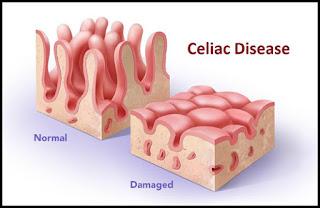 celiac-disease-diagram