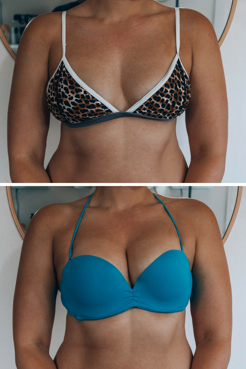 before and after of upbra use, cleavage lift, instant boob job