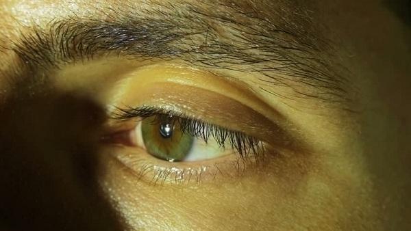 7 Cara Atasi Mata Kuning yang Aman dan Efektif