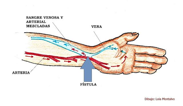 Dibujo del esquema de una fistula arteriovenosa, mostrando el flujo de sangre venosa mezclada con arterial a la altura de la muñeca
