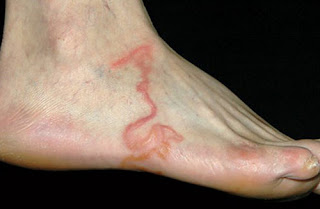 An image showing a visible hookworm burrowed under the skin's surface hookworm rash pictures